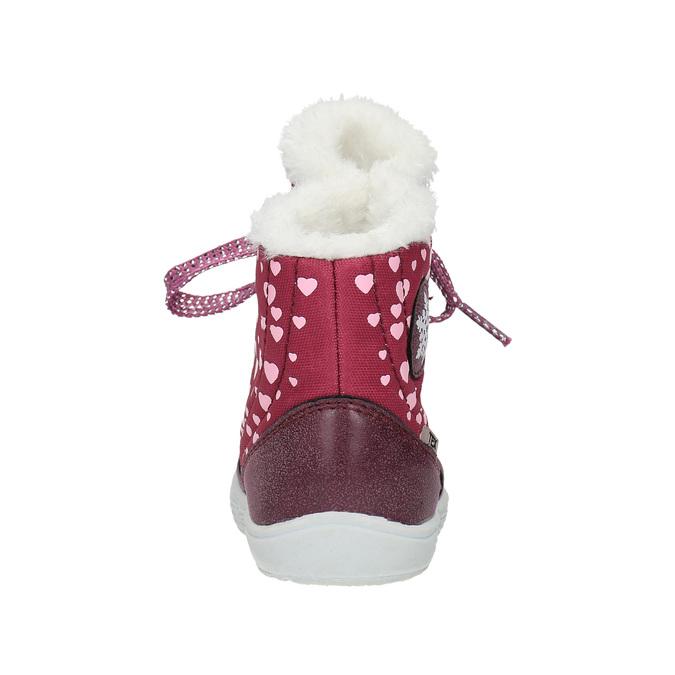 Dívčí zimní obuv s kožíškem bubblegummer, červená, 199-5600 - 17